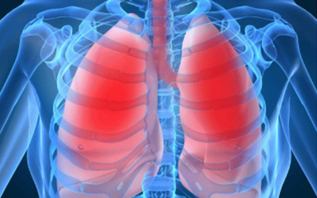 Formantia _ Dia Mundial Tuberculosis